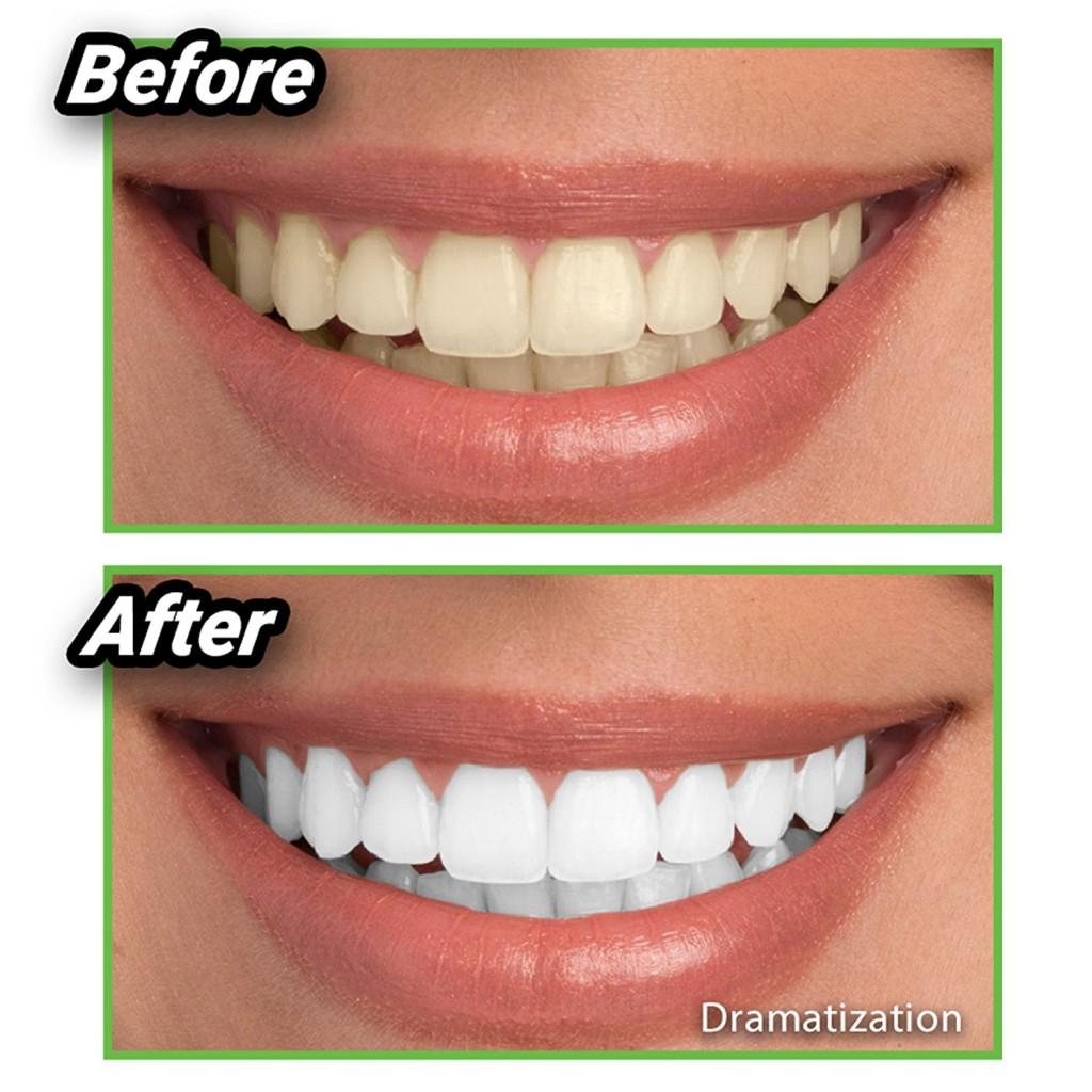 Miracle Teeth - uhlie pre bielenie zubov Dokonalý úsmev ,to je sen každého muža i ženy.  Čierne uhlie na bielenie zubovjednoducho nasypetena kefku s pastouna zuby a čistíte tak, jak ste zvyknutý.